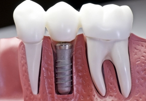 Dental Implant Restoration, Aliso Viejo, CA