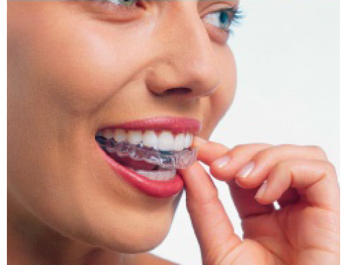 Invisalign | Your Path to Clearly Beautiful Pearly Whites.