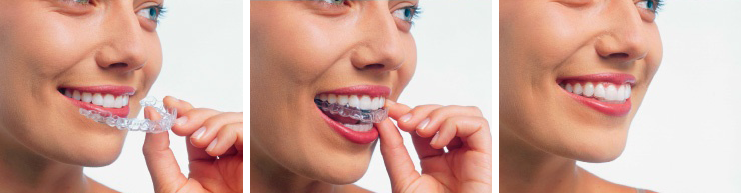 invisalign-tray-in-mouth