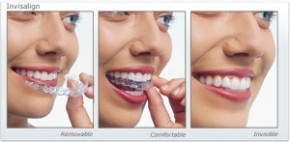 Smile with Invisalign