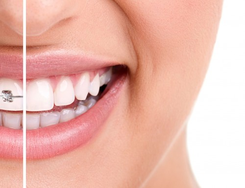 Health Benefits of Invisalign Treatment