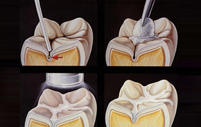 dental sealants Laguna Hills - dental sealants Laguna Niguel