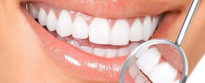 Tooth Whitening in Aliso Viejo