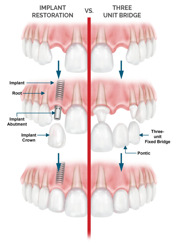 Implant Restorations Aliso Viejo - Bridges California
