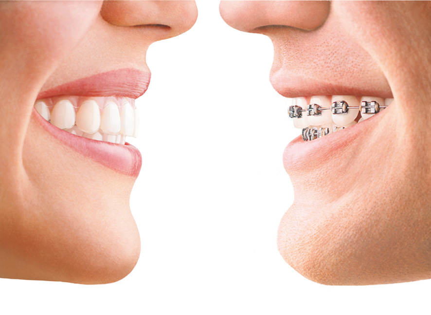 Debunking the Myths of Invisalign