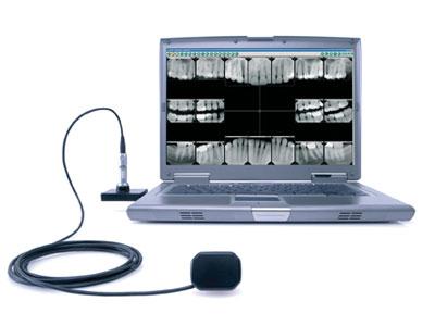 Digital X-Rays Aliso Viejo