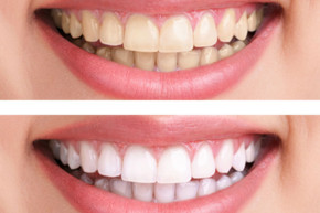 teeth whitening California - teeth whitening Aliso Viejo- cosmetic dentist