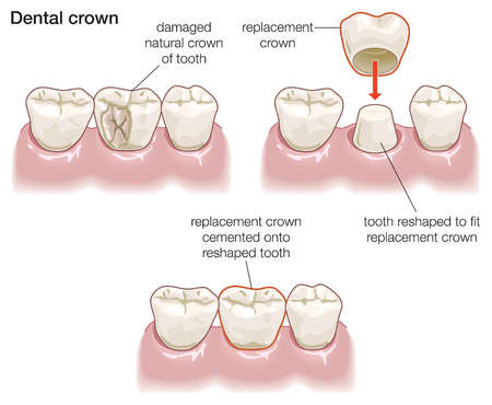 Crowns - dental crown Laguna Niguel - dental crown Aliso Viejo