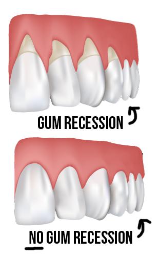 Gum_Recession