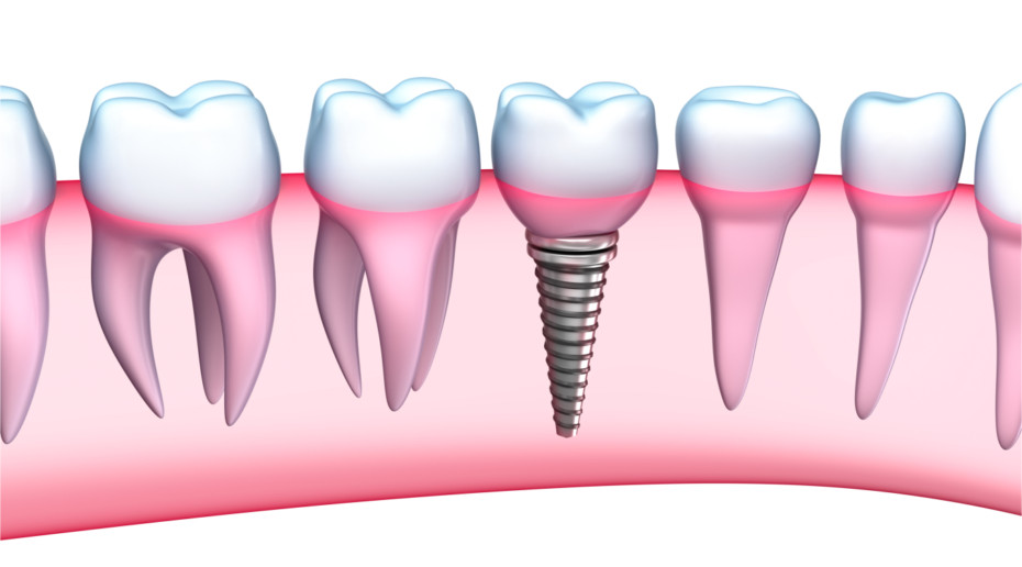 Dental Implants detailed view. 3D Illustration on white background