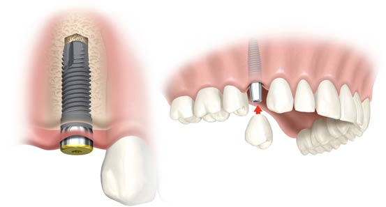 aliso-viejo-dental-implants