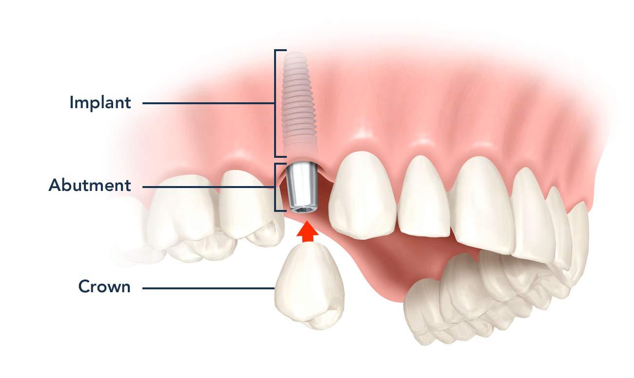 dental-implant-turnerdentalcare