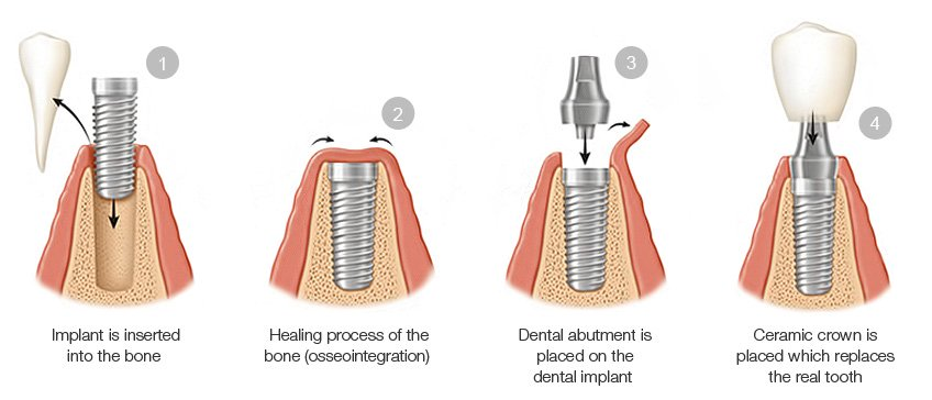 Dental Implants Aliso Viejo | Cosmetic Dentist Near Me ...