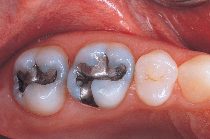 Amalgam Tooth Fillings