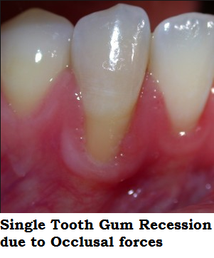 Single Tooth Gum Recession