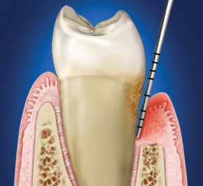 Periodontal Pockets