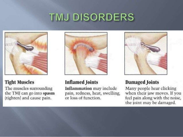 TMJ from grinding or clinching