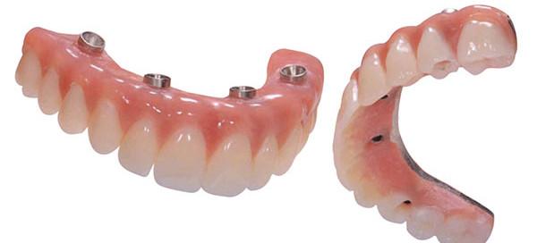 All-on-4 teeth, permenant teeth, dental implants