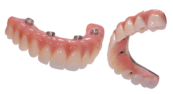 All-on-4 teeth, permenant teeth, dental implants