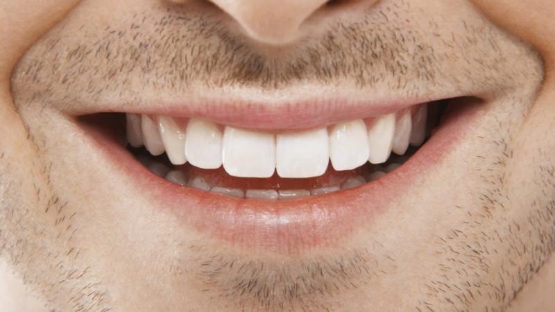Dental Implants in Aliso Viejo Turner Dental Care