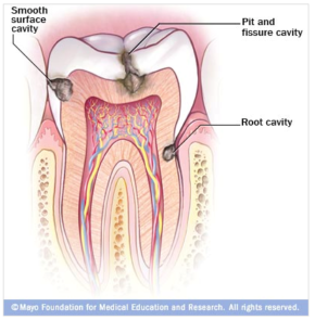 dental decay (cavities)