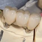 Dental implant bridge, All-on-4, cosmetic dentist