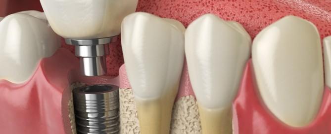 consider dental implants