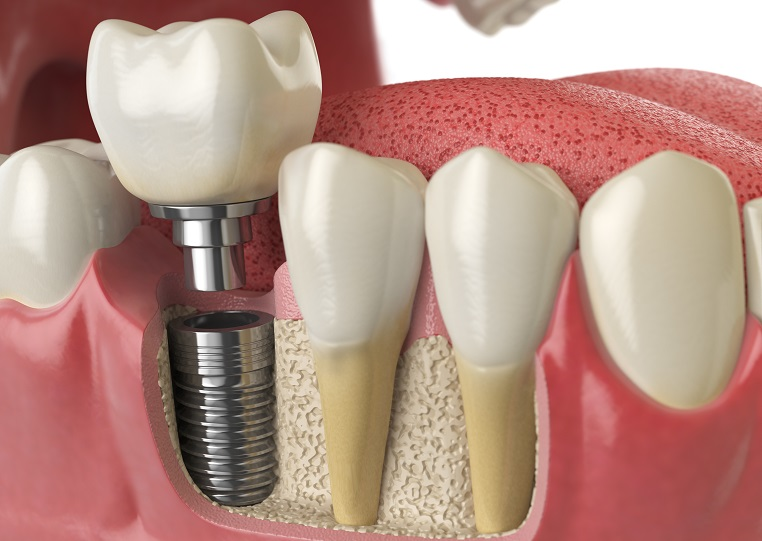 Reasons to Consider Single Tooth Dental Implants