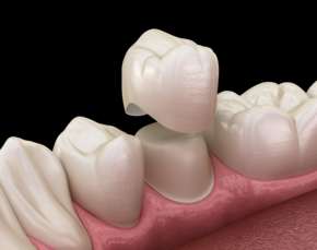 dental crowns; dentist in Aliso Viejo