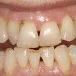 bone loss and gum disease