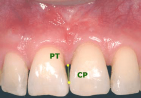 Beautiful Teeth- Turner Dental Care