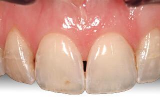 Black triangle of space between teeth