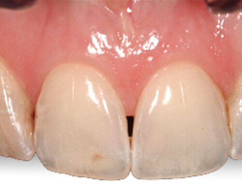 Tired of the dark triangle spaces between your front teeth?