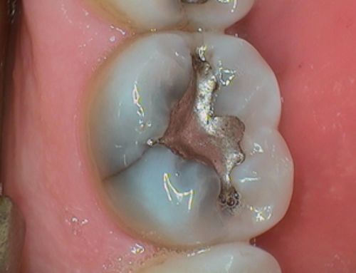 What to Know about a Cracked Tooth
